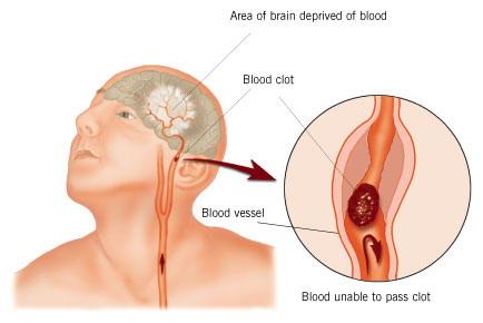 علاج الجلطة الدماغية شبكة الشفاء العالمية