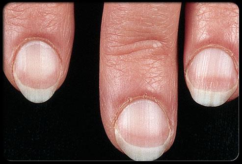 وضعك الصحي أظافرك ........................... nail_1.jpg