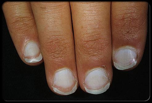 وضعك الصحي أظافرك ........................... nail_2.jpg