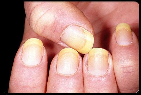 وضعك الصحي أظافرك ........................... nail_3.jpg