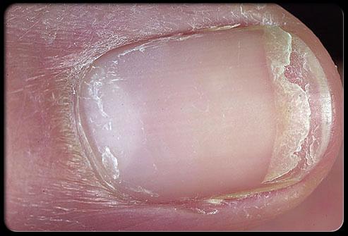 وضعك الصحي أظافرك ........................... nail_6.jpg