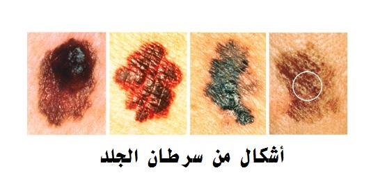 سرطان الجلد Skin-cancer